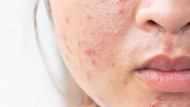 Photo of 15 Natural Remedies to Clear Up Acne Scars