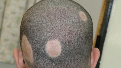 Photo of What is Alopecia? Alopecia Treatment & Alopecia Causes