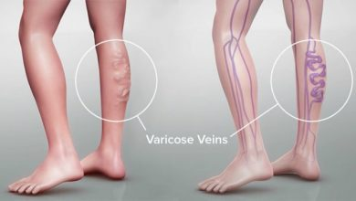 How Serious are Varicose Veins