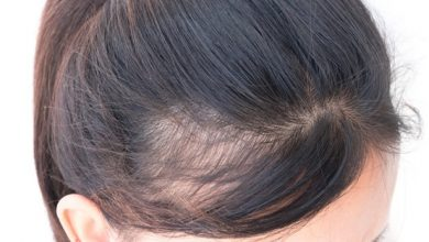 Photo of Treating Androgenic Alopecia: What are the best options?
