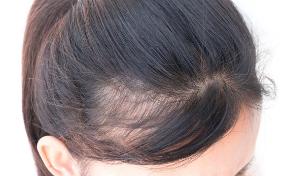 Treating Androgenic Alopecia